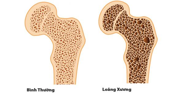 5 ngộ nhận thường gặp về loãng xương